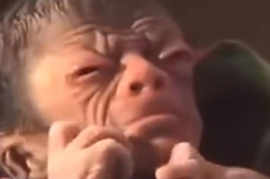 Niño con progeria