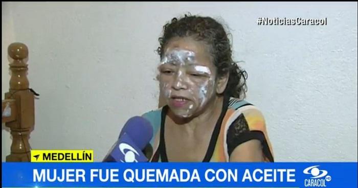 Mujer quemada con aceite caliente