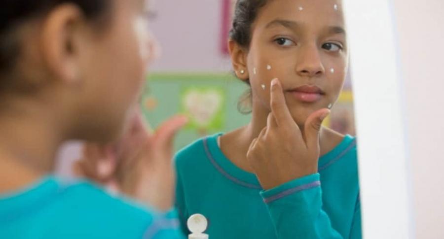 Crema dental para el acné